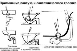 Схема применения вантуза и тросика