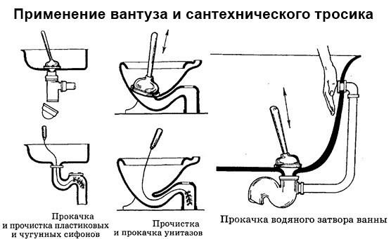 Схема устранения засора с помощью вантуза и  сантехнического тросика