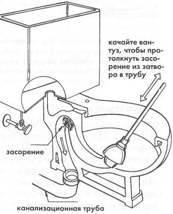 Схема устранения небольшого засора вантузом